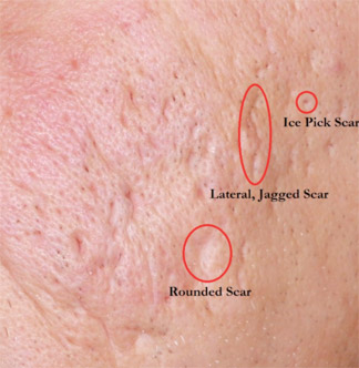 Example of acne scarring on cheek